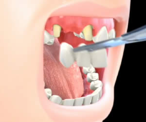 dentalbridge-1.jpg