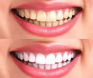 homewhitening