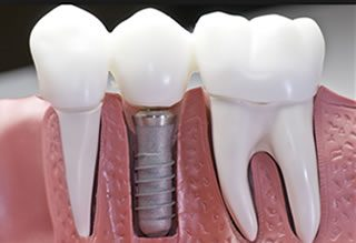https://weymouthsmiles.com/wp-content/uploads/2015/11/dentalimplants2-320x219.jpg