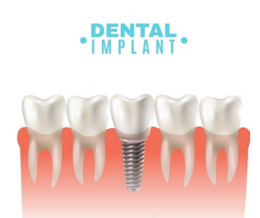 dental-implants-7.jpg