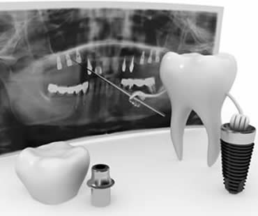 dental-implants-3.jpg